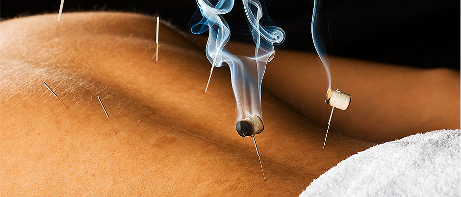 Acupuncture Therapy in Noosa